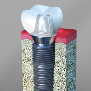 Dental Implants Linden