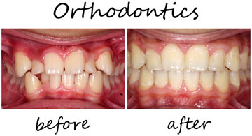 Orthodontics 1