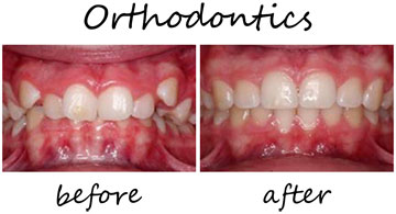 Orthodontics 2