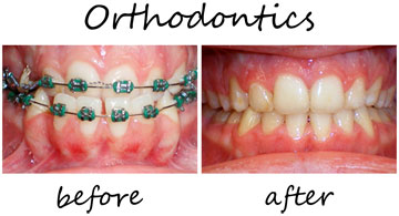 Orthodontics 3